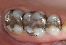 Before CEREC® quadrant